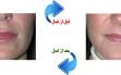 lip-augment