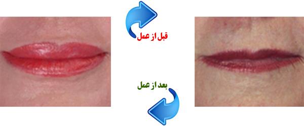 lip-augment2