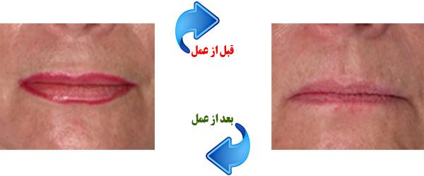 lip-augment3
