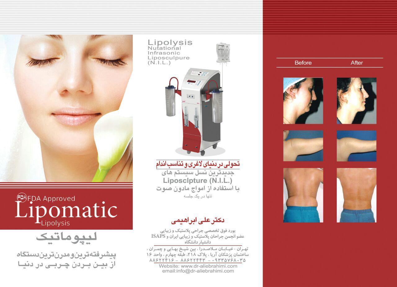 Lipomatic1